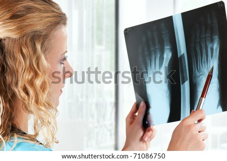 Medical doctor analysing x-ray photography in hospital - stock photo