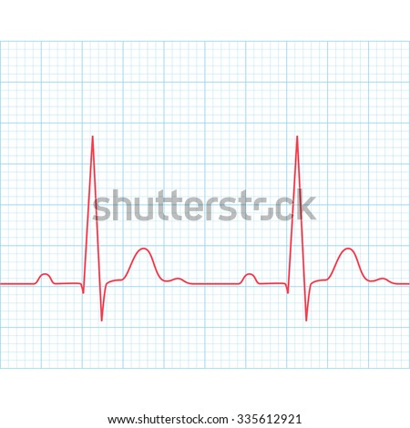 Medical electrocardiogram - ECG on grid paper, graph of heart rhythm, 2d illustration, raster - stock photo