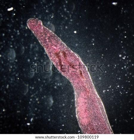 medical microscopy animal parasiteras schistosome blood flukes - stock photo