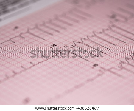 Medical report and cardiogram - stock photo