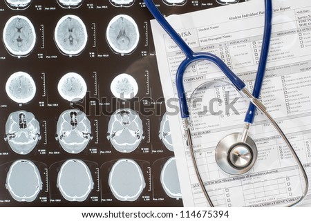 Medical report and stethoscope lying over xray doctor documentation