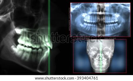 medical technology - stock photo