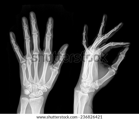 Medical X-Ray imaging of hand fingers used in diagnostic radiology of skeleton bones , two position