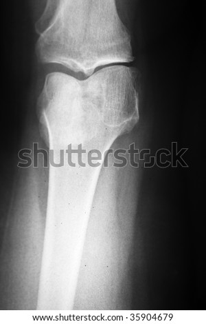 Medical x-ray of a damaged knee in vertical format - stock photo