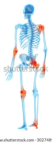 medically accurate illustration - painful joints - stock photo