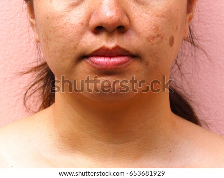 Dating a girl with acne scars