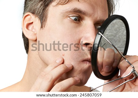 Men squeezing a pimple on white background - stock photo
