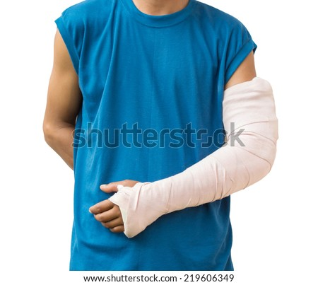 Men with his broken arm. Isolated on white background - stock photo
