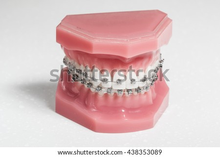 Metal brackets - tooth aligners on a model jaw, white background - stock photo