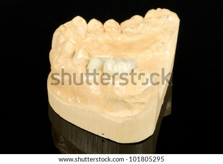 metal free dental crowns, partly finished with model