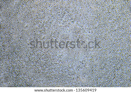 Microscopic view of brewer's or baking yeasts cells - Saccharomyces cerevisiae - stock photo