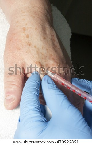 Microsurgery: Dermatologist doctor removing skin  disease