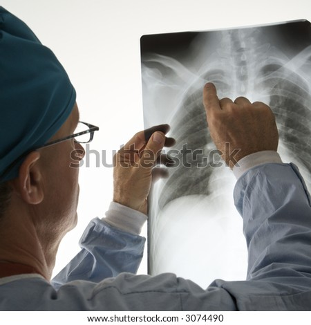 Mid-adult Caucasian male doctor pointing at a bone on a x-ray. - stock photo