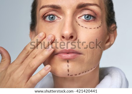 Mid Age Woman With Correction Mark For Plastic Cosmetic Surgery, Vanity  Perfection