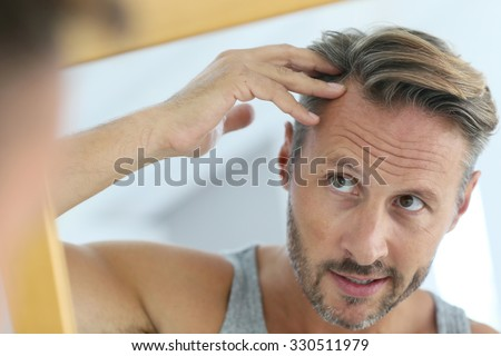 Middle-aged man concerned by hair loss - stock photo