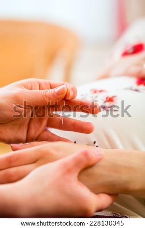 Midwife setting pregnant woman acupuncture needle - stock photo