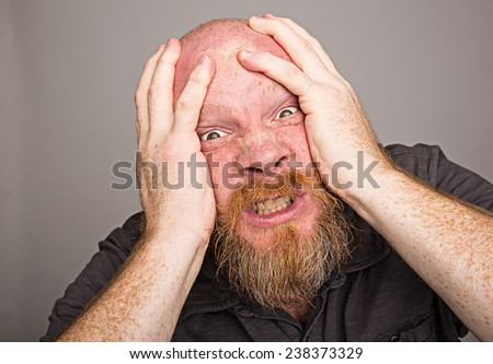 Migraine Headache - stock photo
