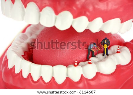 Miniature workers drilling a tooth. Dental concept. - stock photo