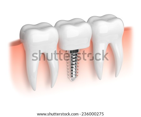 Model of white teeth and dental implant - stock photo