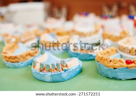 models for denture prosthesis production at dental technician laboratory - stock photo