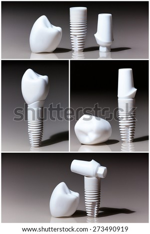 Models of dental, implants, dental dentist objects implants composition collage - stock photo