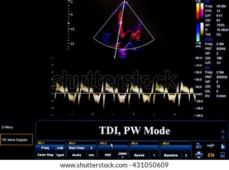 Modern echocardiography (ultrasound) machine monitor. Colour image. New hospitl equipment. TDI, PW Mode. - stock photo