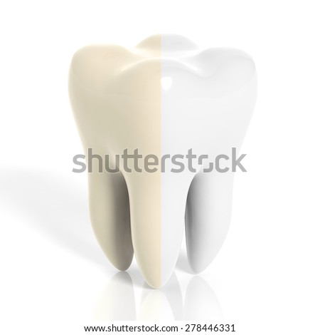 Molar tooth white and yellow isolated on white background - stock photo