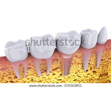 molars and implant in the jaw bone, 3d render