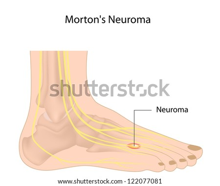 Morton's neuroma - stock photo