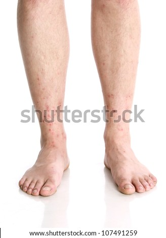 mosquito bites on males legs on white background - stock photo