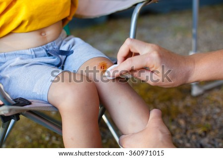 Mother treats her son skinned knee (Shallow DOF). - stock photo
