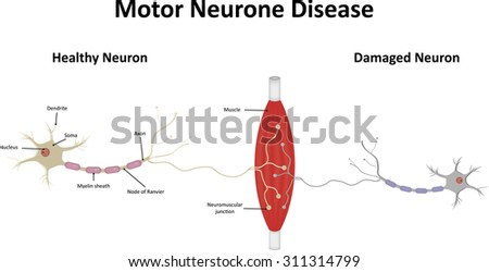 Motor Neuron Disease Stock Images Royalty Free Images
