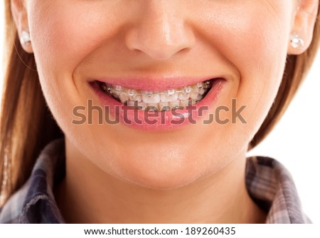 Mouth care teeth with braces isolated - stock photo