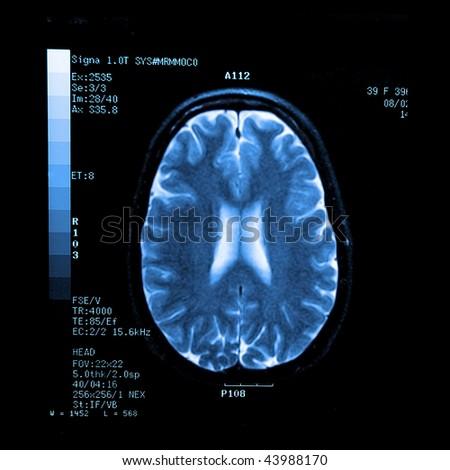 MRI - stock photo