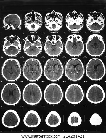 MRI brain in a 65 years old man with right facial palsy: Demonstrated Hypodense lesion involving subcortical  and deep white matter of the right frontotemporal and left frontal lobes.  - stock photo