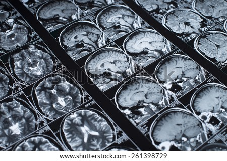 MRI Brain Scan of head and skull