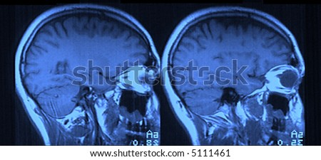 MRI Head - stock photo
