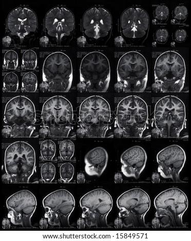 MRI head scan - stock photo
