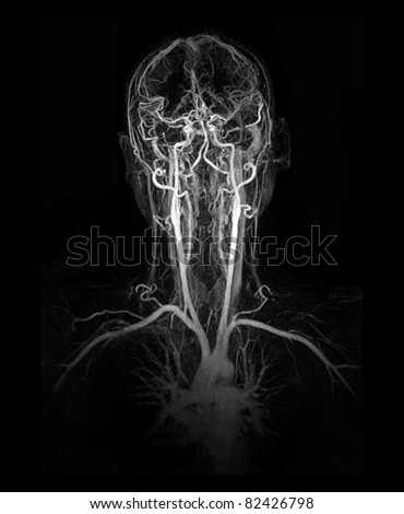 MRI image (MRA) show head and neck artery and vein - stock photo