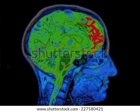 MRI Image Of Head Showing Brain - stock photo