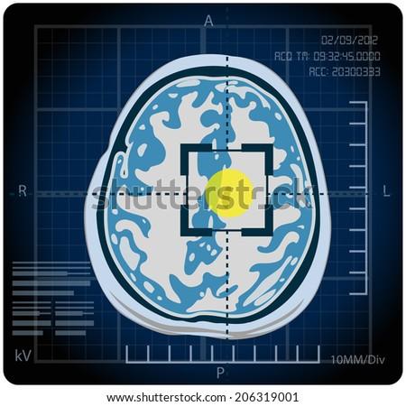 MRI - Magnetic Resonance Imaging - Illustration - stock photo