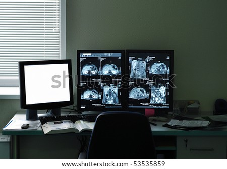 MRI/ MRA (Magnetic Resonance Angiogram) of the human body in doctors office