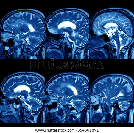 MRI of Brain  - stock photo