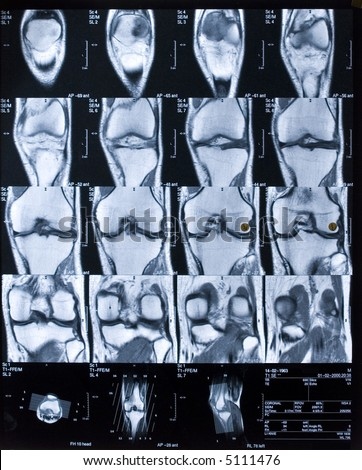 MRI of knee in front view. - stock photo