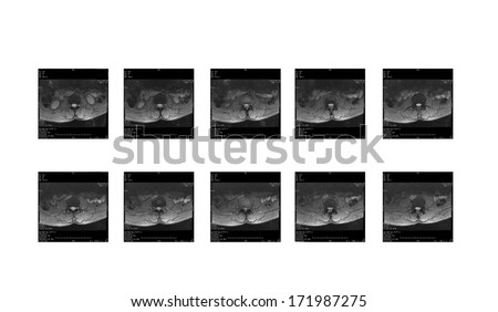 MRI of LS-spines: demonstrated degenerative L-disc with anterolisthesis, L3/4 and L4/5 disc bulging causing severe central canal stenosis, Compression of L4 and L5 traversing nerve roots.  - stock photo