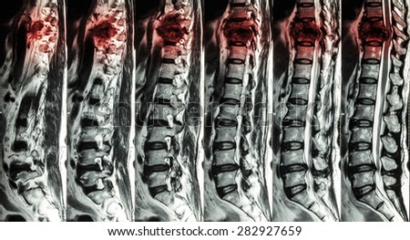 MRI of Lumbar & Thoracic spine : show fracture of thoracic spine and compress spinal cord ( Myelopathy ) - stock photo