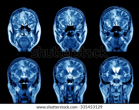 MRI scan image of brain - stock photo