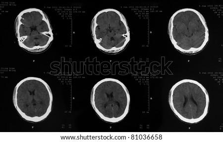 MRI tomogram of human brain - stock photo