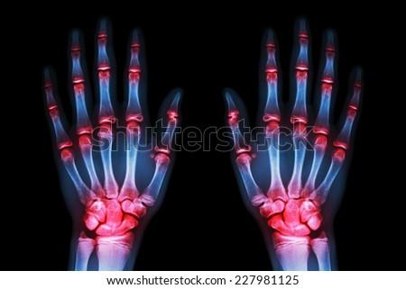 multiple joint arthritis both hands ( Gout , Rheumatoid ) on black background - stock photo