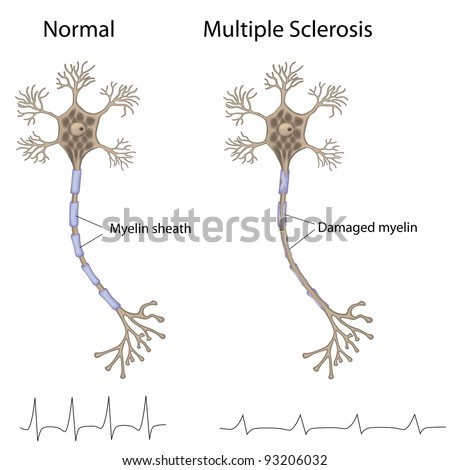 Multiple sclerosis - stock photo